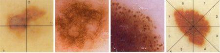Voorbeelden_dermatoscopie